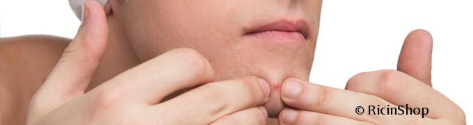 huile ricin acné